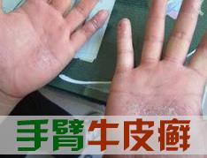 牛皮癣出现在手部的原因