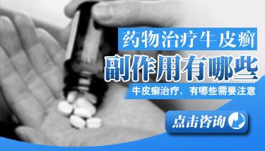 激素类药物治疗牛皮癣会导致哪些副作用?