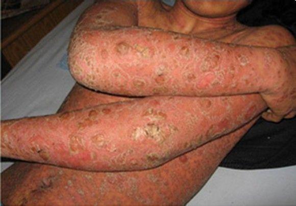 牛皮癣的早期症状都有什么