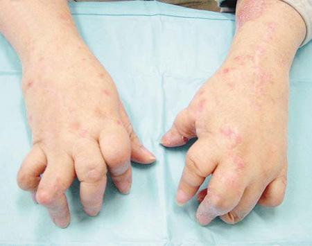 急性牛皮癣什么症状