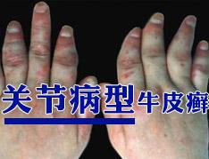 关节型银屑病症状及危害