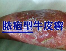 什么是脓疱型银屑病