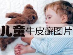 儿童牛皮癣常识?