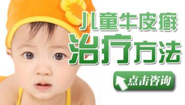 儿童牛皮癣治疗注意事项?